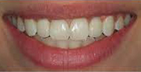 After Dental Implants in Milton Keynes