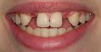 Before Dental Implants in Milton Keynes