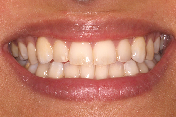 After Dental Veneers in Milton Keynes
