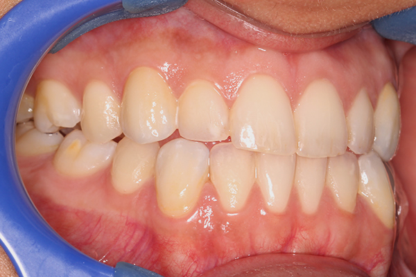 Post Dental Veneers in Milton Keynes