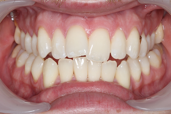 Post Teeth Whitening Treatment in Milton Keynes