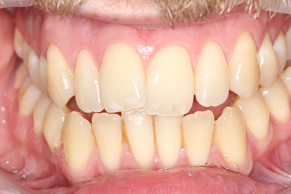 Pre Teeth Whitening Treatment in Milton Keynes